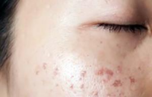 2hiperpigmentacaoposinflamatoria