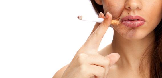 Avaliação relaciona envelhecimento facial ao tabagismo